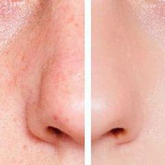 LED foryngende SPA maske for ansiktet; 7 programmer + GRATIS